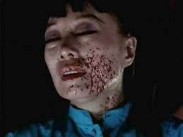 Jadin Wong getting a blood facial